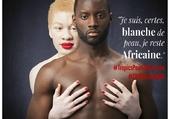 Albinisme-Albinos