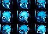 Puzzle IRM d'un crâne en vue saggitale gauche